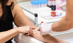 Exame é feito a partir de amostra de sangue  Créditos: divulgação